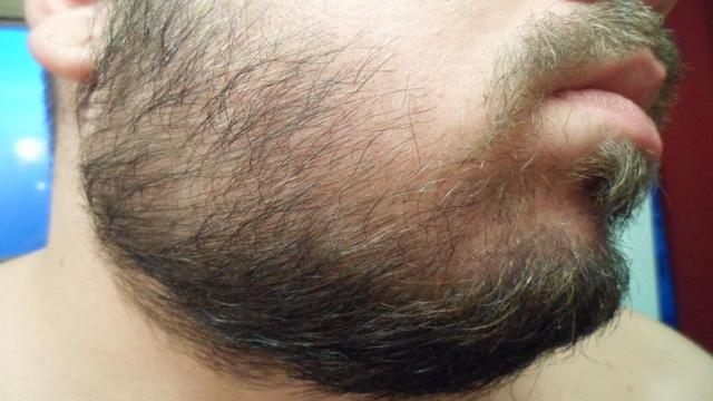 trimming-the-beard-from-the-top-of-both-cheeks